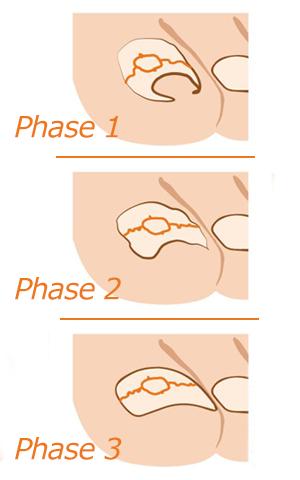 Korrekturspange_Phasen